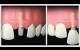 Qu'est-ce qu'un implant dentaire