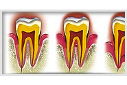 Qu'est-ce qu'une maladie parodontale ?