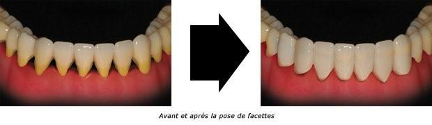 Facette_2