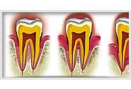 Qu'est-ce qu'une maladie parodontale