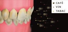 Coloration dentaire