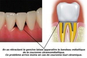 Coloration dentaire 2