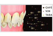 Esthetique coloration dentaire