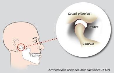 Pathologie articulations temporo mandibulaire 2