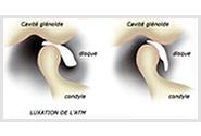 Pathologie articulations temporo mandibulaire