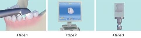 La chaine numérique étape par étape 1