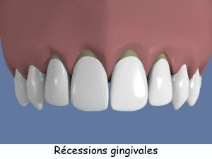 Qu'est-ce qu'une récession gingivale 2
