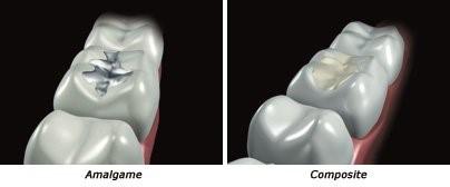 Comment restaurer une dent : Les techniques directes 2