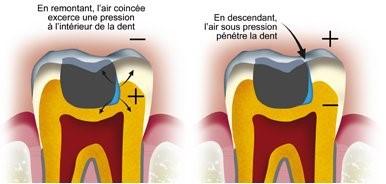 Barotraumatisme de la dent 2