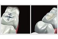 Comment restaurer une dent : Les techniques directes