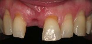 Les implants dentaires - Figure 1