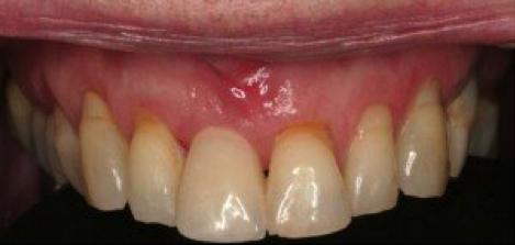 Les implants dentaires - Figure 3