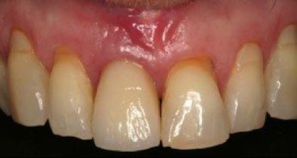 Les implants dentaires - Figure 4