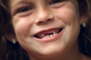 Les percées dentaires
