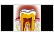 Qu'est ce que le parodonte